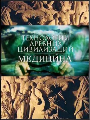 Технологии древних цивилизаций. Медицина / Technology of ancient civilizations. Medicine (2011) SATRip