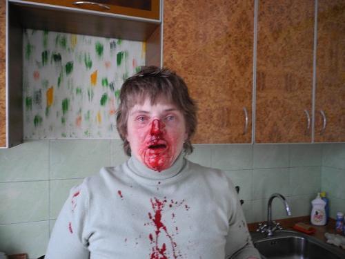 избитые дети родителями фото