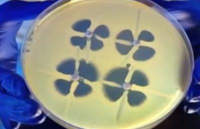 В США появилась особо опасная смертоносная бактерия — медицина бессильна…