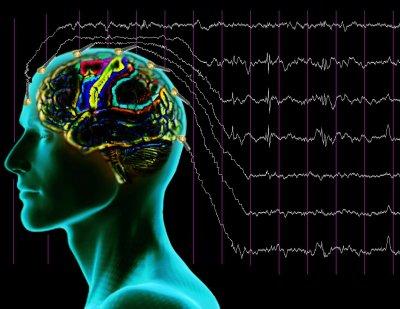 Магнитная стимуляция мозга изменила музыкальные предпочтения людей