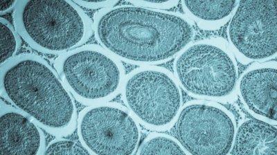 Чем заблокировать рост метастаз при онкологии