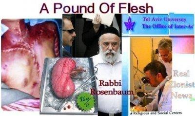 Израиль - главный черный трансплантолог
