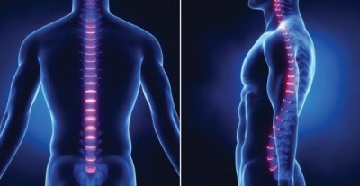 7 способов избавиться от болей в спине