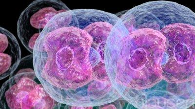 Лимфама: диагностика и лечение