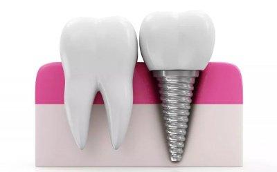 Руководство по зубным имплантатам