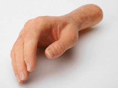 Где купить косметический протез руки?