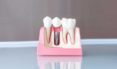 Зубные импланты: основные преимущества