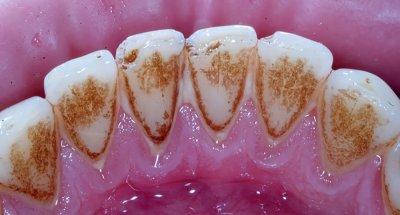Пигментация зубов: что это и причины её возникновения