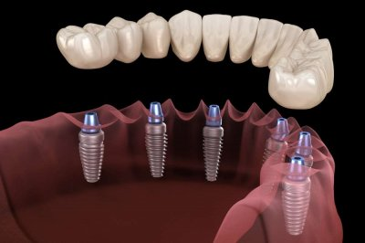 Протезирование зубов на Академической