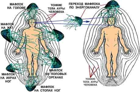 паразиты воде опасные человека