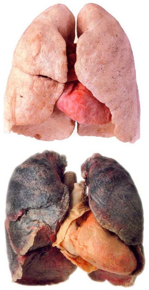 Рак легких у курильщика (фото вверху - здоровые легкие)