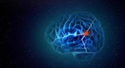 Мозг изменяющий себя сам (Нейропластичность Мозга). Документальный фильм