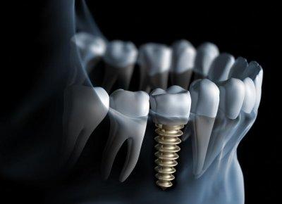 Практическая стоматология: импланты или протезы?