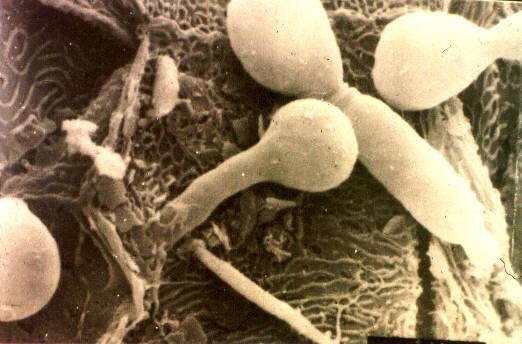 дрожжевой грибок на влагалище-гы2